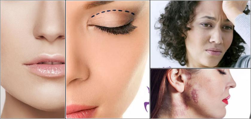 Liposuction Nedir, Nasıl Yapılır?