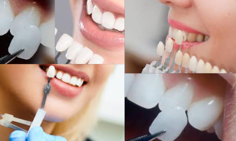 Yaprak Diş Uygulaması İle Mükemmel Bir Gülüşe Kavuşun