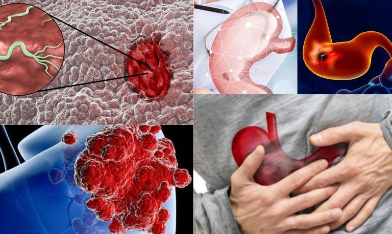 Pankreas Kanseri Tanı ve Tedavi Yöntemleri
