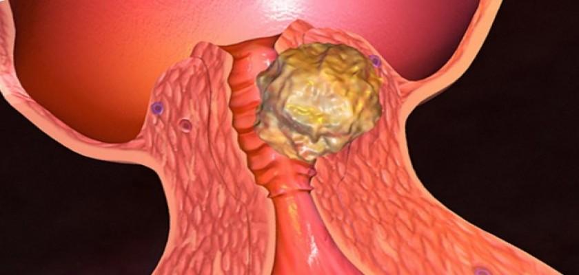 Rahim Ağzı Kanseri Tedavisinde Rahim Ağzı Kanseri Aşısı ve Önemi
